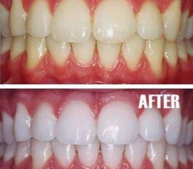 Natural Teeth Whiteners
