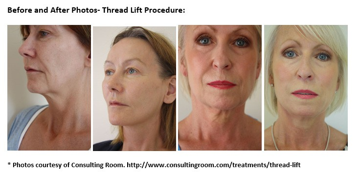 From Frog Faced to Fabulous Thanks To A Magicical Thread Lift